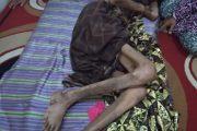 1,6 Tahun Menderita Kanker Darah, Warga Desa Uthen Ghathom ini Bingung Biaya Berobat