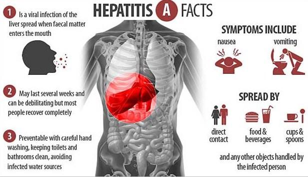 Warga Diminta Waspadai Penyakit Hepatitis A